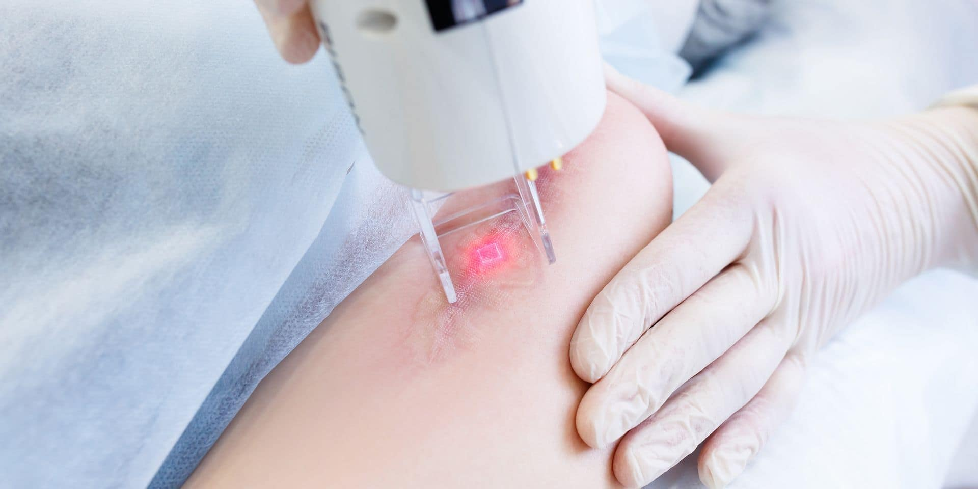 Les solutions pour atténuer les cicatrices