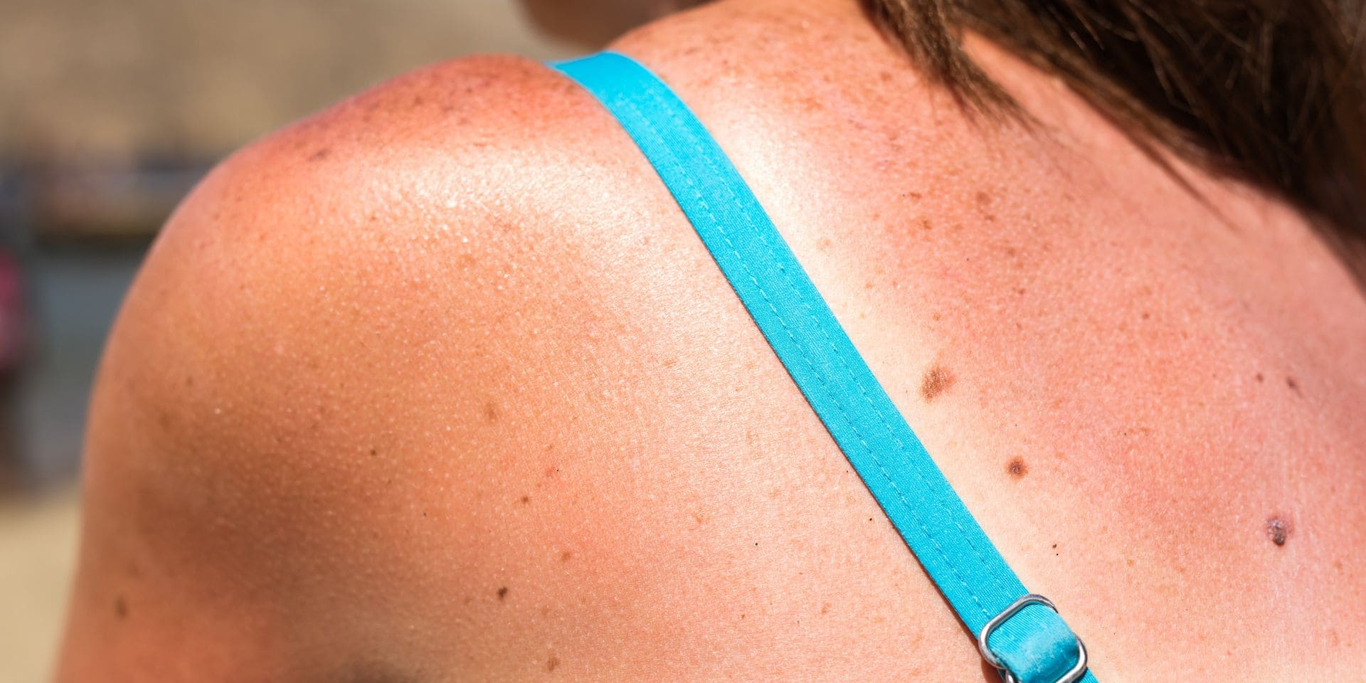 Sunburn,From,Beach,Sun,Light,On,The,Shoulder,And,Back