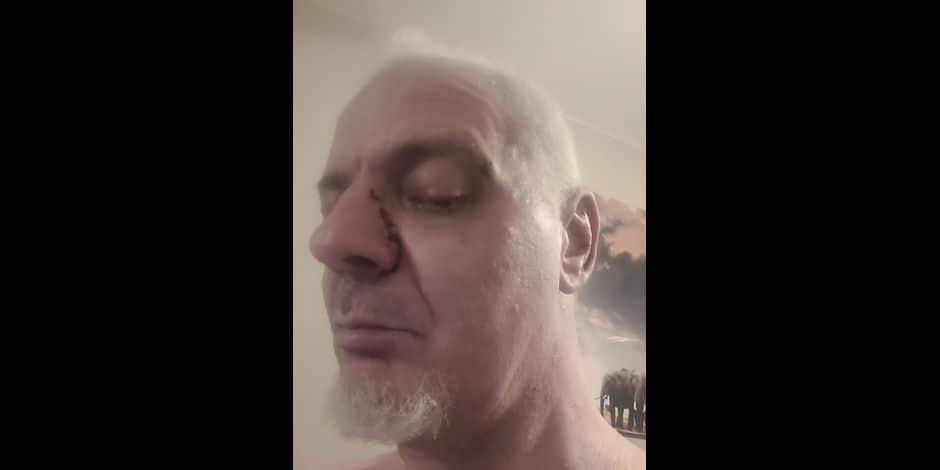 Incident routier très grave sur la N90: Frédéric lance un appel à témoin pour retrouver son agresseur