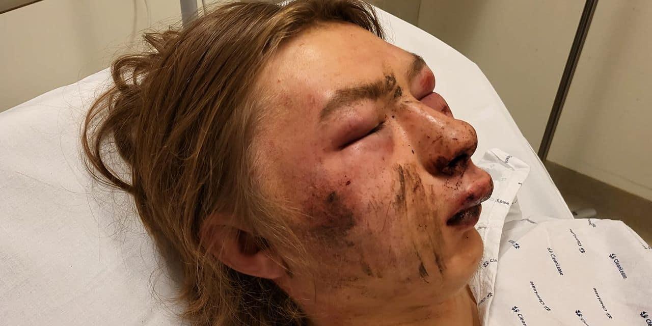 """Le père de l'ado violemment agressé à Namur ne décolère pas: """"Que la justice fasse un exemple avec eux"""""""