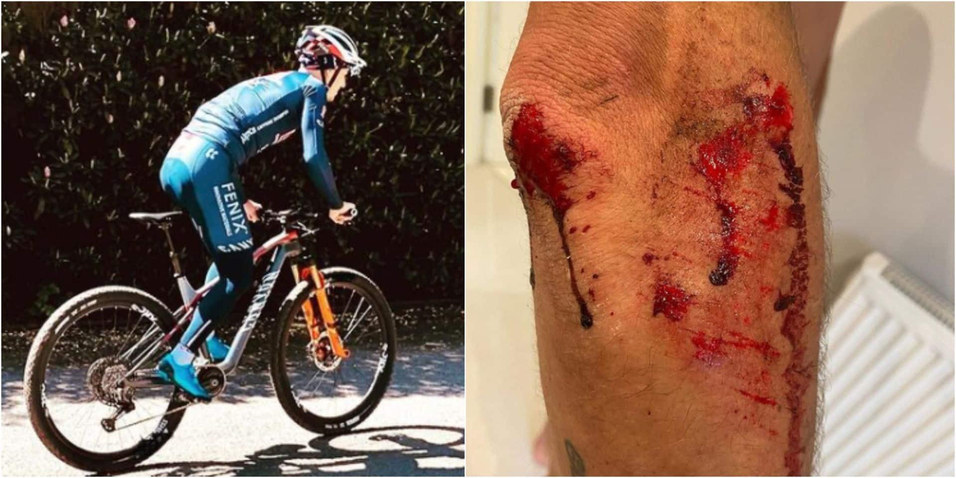 Un coureur cycliste pro agressé par 4 individus en plein entraînement: il a été percuté à haute vitesse par une moto
