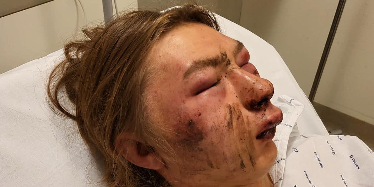 Trois individus placés sous mandat d'arrêt après l'agression d'Ethan, 15 ans, à Namur